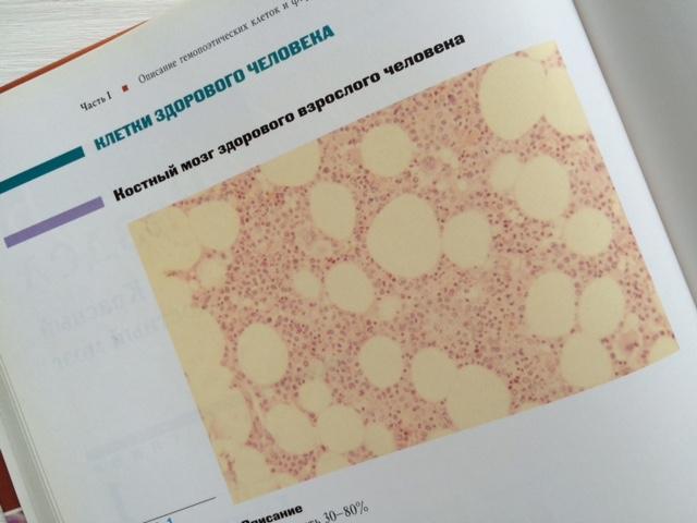 obschij-analiz-krovi-chto-oznachaet-04